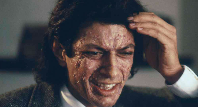 Seth Brundle (Jeff Goldblum) begins to show signs of transformation in The Fly.